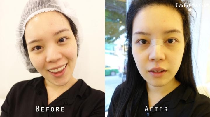 3.before-after_zpswrjyw5ek