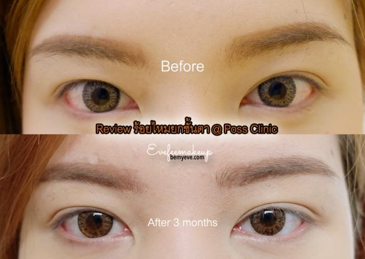 Review ร้อยไหมยกชั้นตา ปรับรูปตาอย่างเป็นธรรมชาติ ที่ possclinic